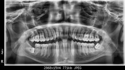 [2019] - Qui i nostri allenamenti sportivi-ortopantomografia.jpg